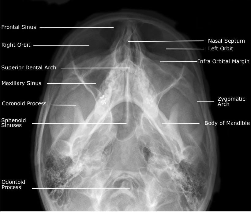 Radiographic Anatomy of Facial Bones PosteroAnterior