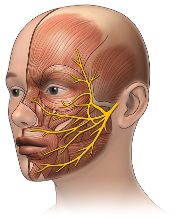 surface anatomy facial nerve - Google Search | medical | Pinterest ...