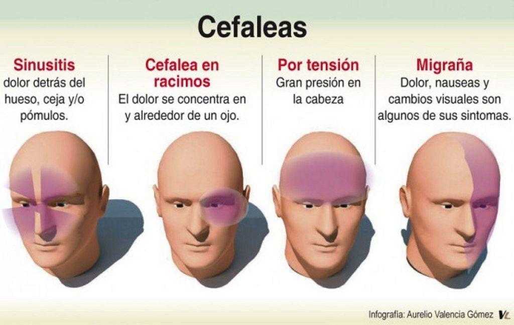 ¿Cuáles son los síntomas de los dolores de cabeza por tensión?