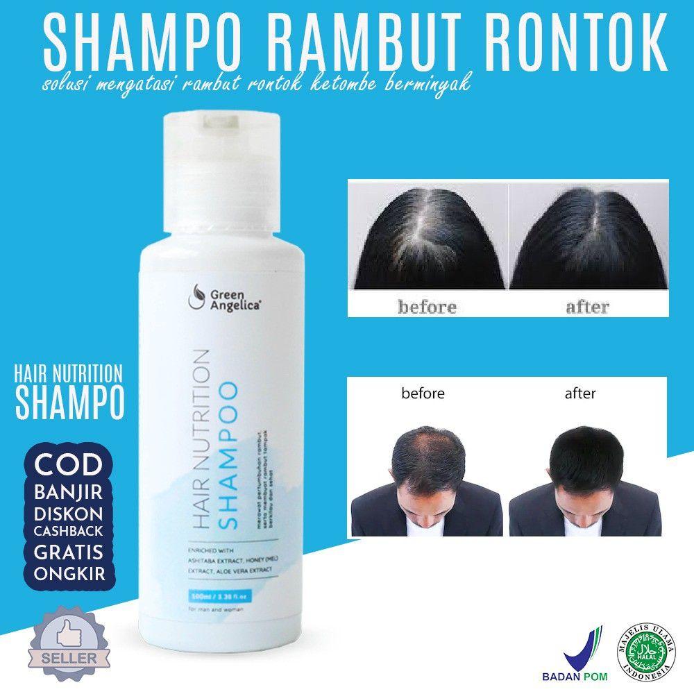 Shampo Penumbuh Rambut Rontok Hilangkan Ketombe Ketombe Rambut Rontok Rambut