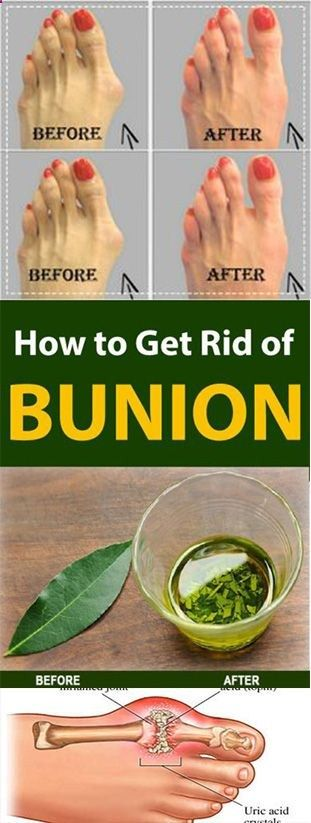 Get Rid of Bunions Naturally With This Simple But Powerful Remedy Get Rid of Bunions Naturally With This Simple But Powerful Remedy