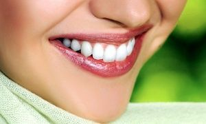 Married Dental Crowns Before And After Products #dentist #DentalCrownMouths