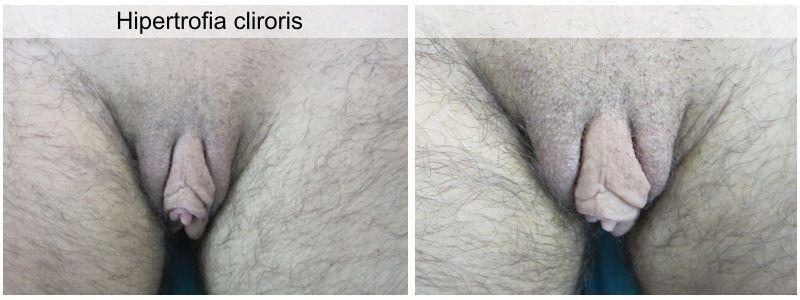 Clitoris hypertrophy photo