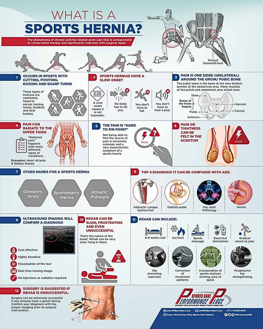 12 Truths About Your Sports Hernia Your Doctor Didn T Tell You Hernia Exercises Infographic Health Sports Medicine