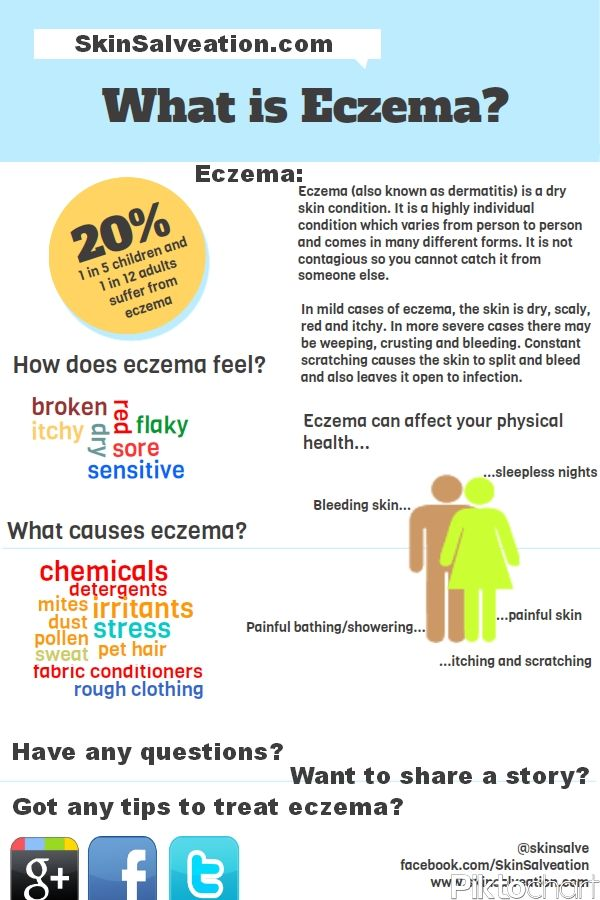 the causes forms and treatment of eczema The goal of treatment for eczema is to relieve and prevent itching, which can lead to infection since the disease makes skin dry and itchy, lotions and creams are recommended to keep the skin moist these products are usually applied when the skin is damp, such as after bathing, to help the skin retain moisture.