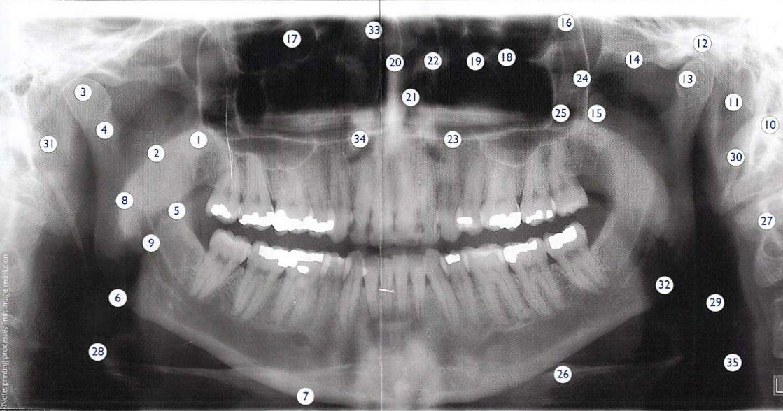 panoramic xray vs full mouth series - 35 reason to go ...