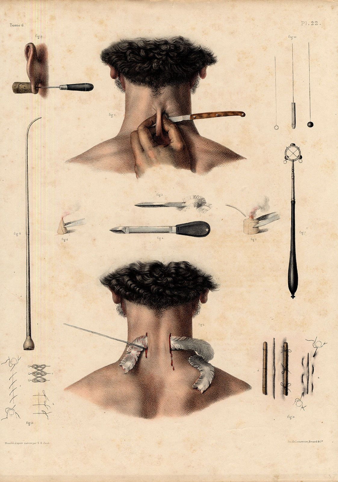 2 Antique Medical Anatomy Prints Operation Instruments PL 22 Bourgery 1831 | eBay