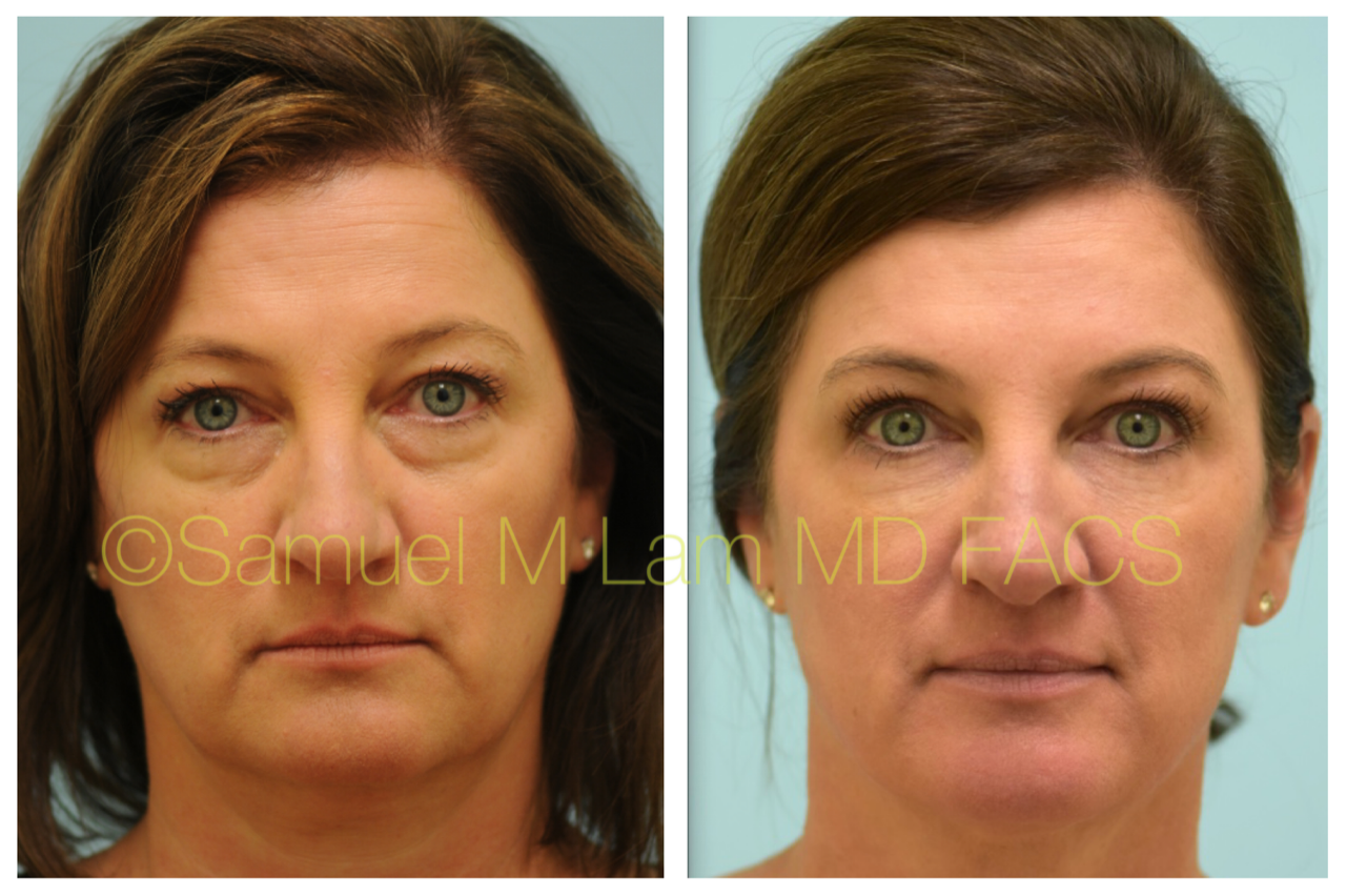 This 51 Year Old Woman Is Shown Before And After Upper