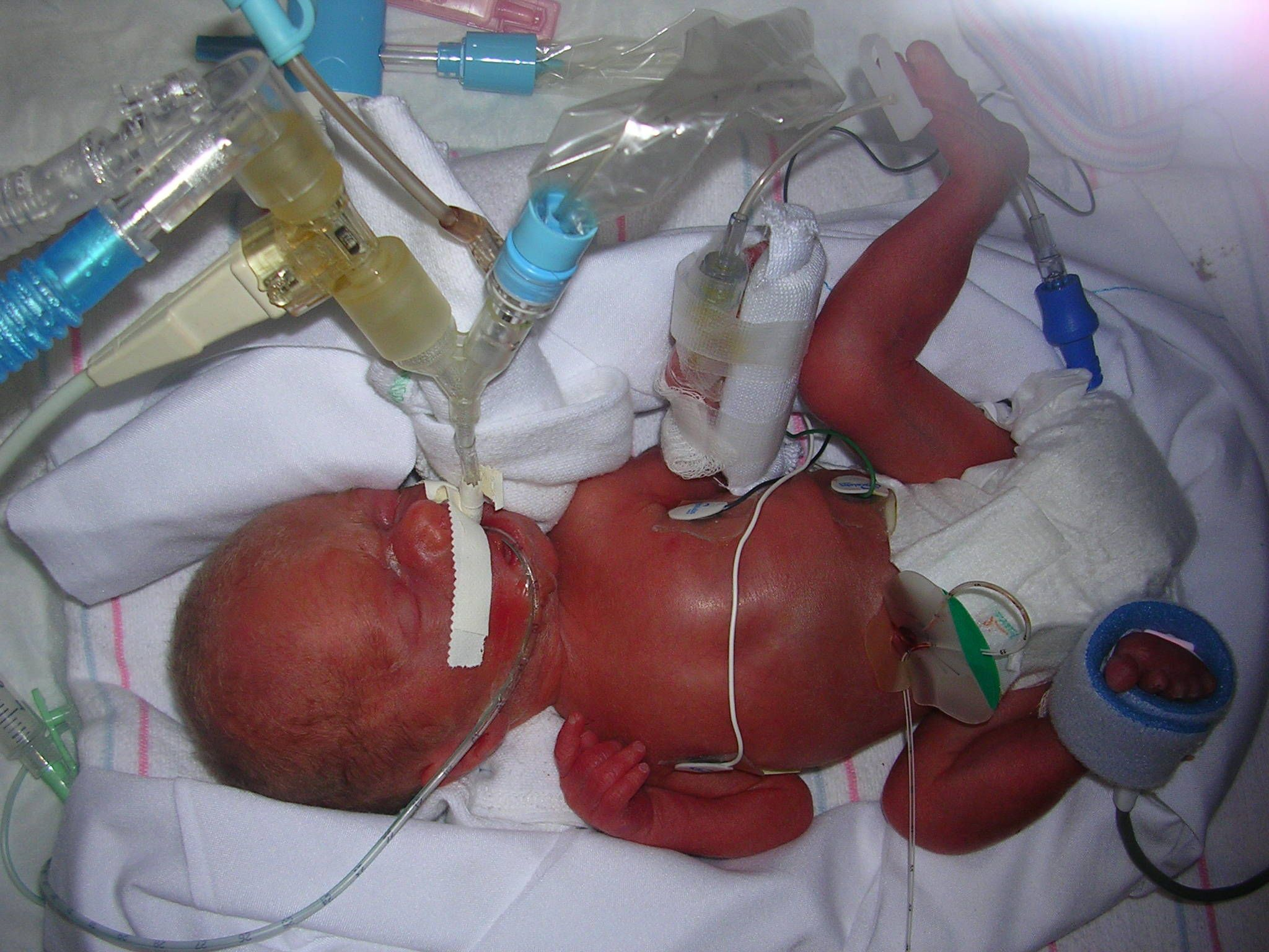 Psychology?.........................what is the effect of the ICU noice on premature babies..........