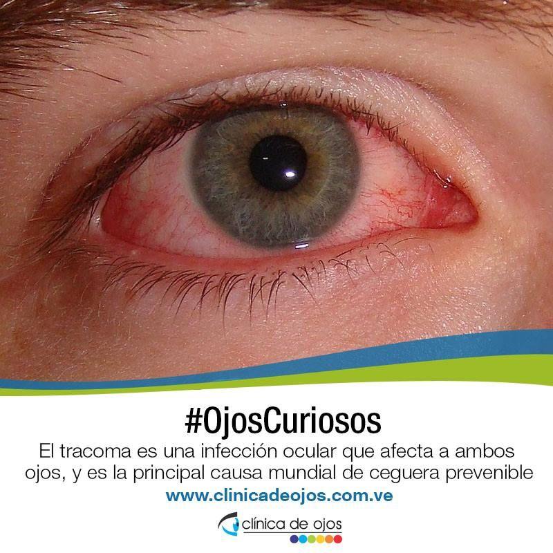 ¿Puede el estafilococo aureus causar infección ocular?