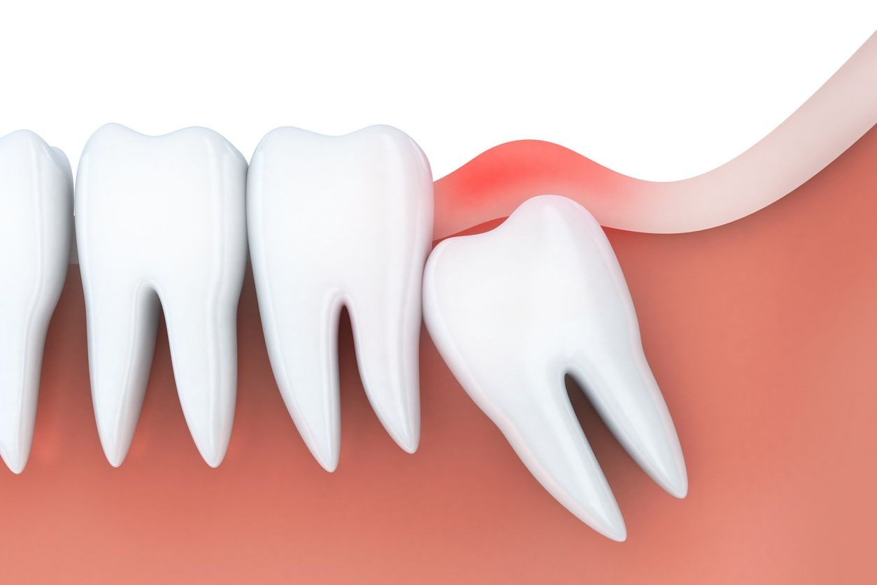 Dentist to prevent misalignment Wisdom teeth, Wisdom