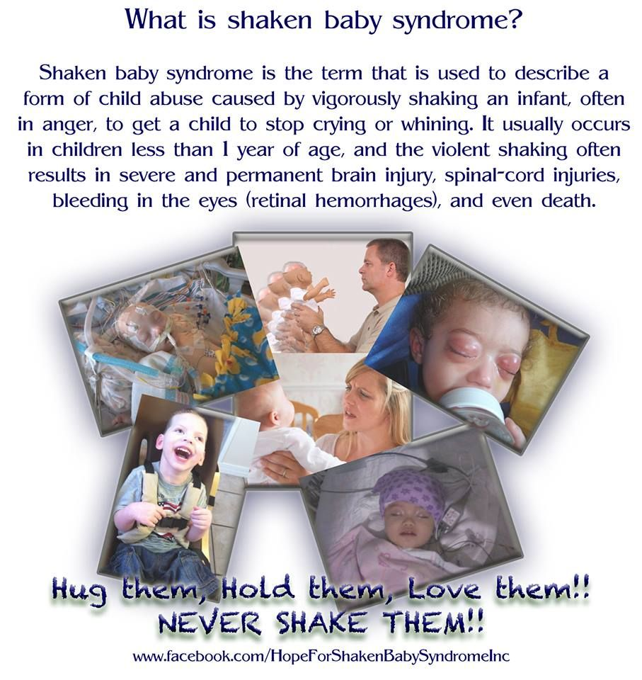 shaken baby syndrome treatment and prognosis Shaken baby syndrome, or abusive head trauma, is the result of the violent shaking of an infant read more about the symptoms and signs of shaken baby syndrome, and and get the facts about how caregivers and parents can prevent this form of child abuse.