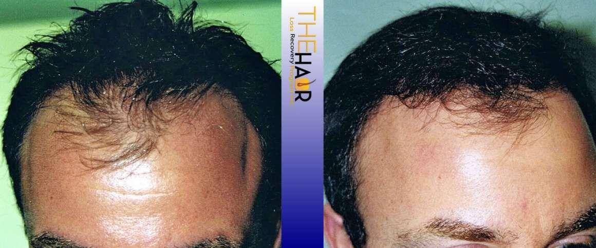 Medical Hair Loss Recovery Hair transplant, Hair loss