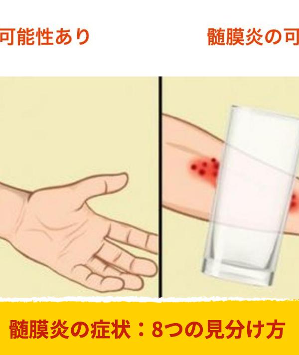 症状 炎 髄 膜