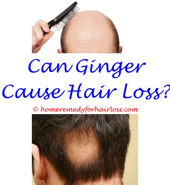 Hair Loss Cream Hair Loss Hair Loss Treatment And Eyebrow Hair Loss