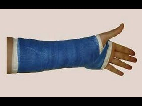 a2789ca4 how to make a fake arm cast that looks real - YouTube | Pranks | Arm ...