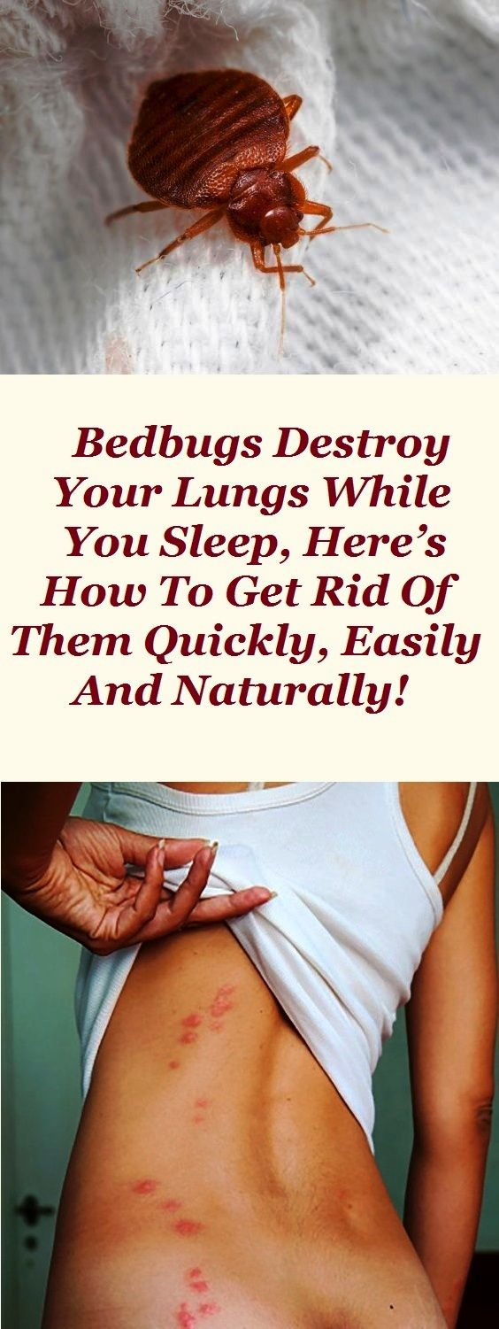 Bedbugs Destroy Your Lungs While You Sleep, Here's How to