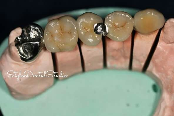 Styledentalstudio On Instagram Another Work 5 Units Pfm Bridge Two General Dentistry Dentistry Instagram Posts