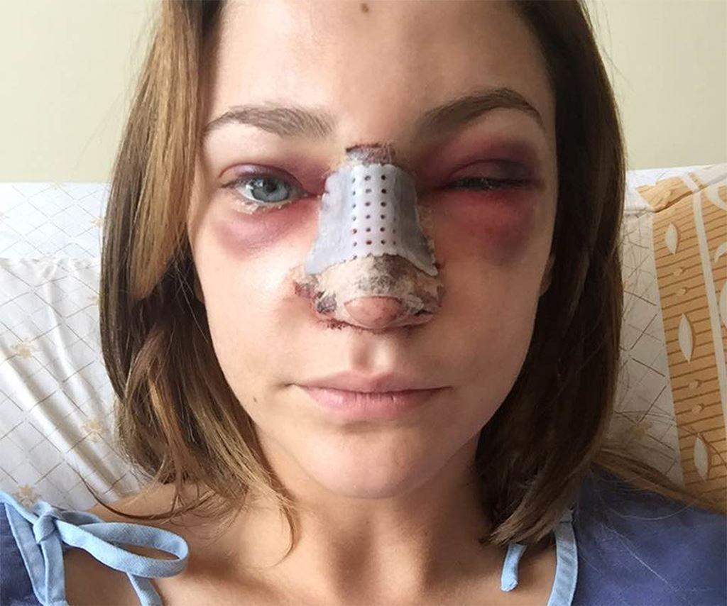 rhinoplasty bruises Google Search Bruises, Rhinoplasty