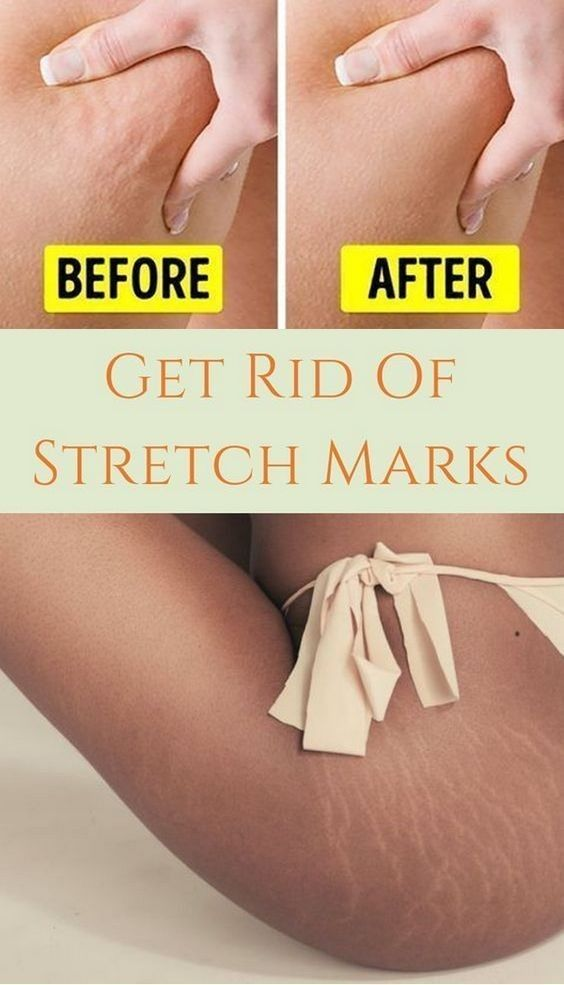 40 Easy ways to remove stretch marks  #stretchmark