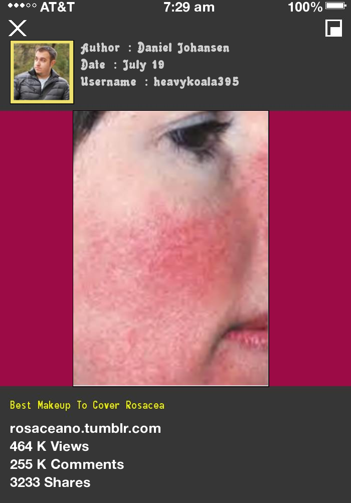 Best Makeup To Cover Rosacea 224744 Rosacea Free Forever.