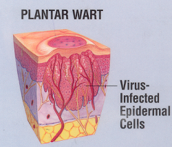 Wart on foot root