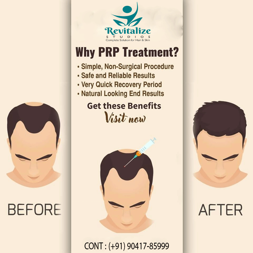 If you are looking for the best treatment for your hairs
