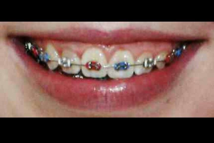 red white and blue braces | Orthodontic my dream job
