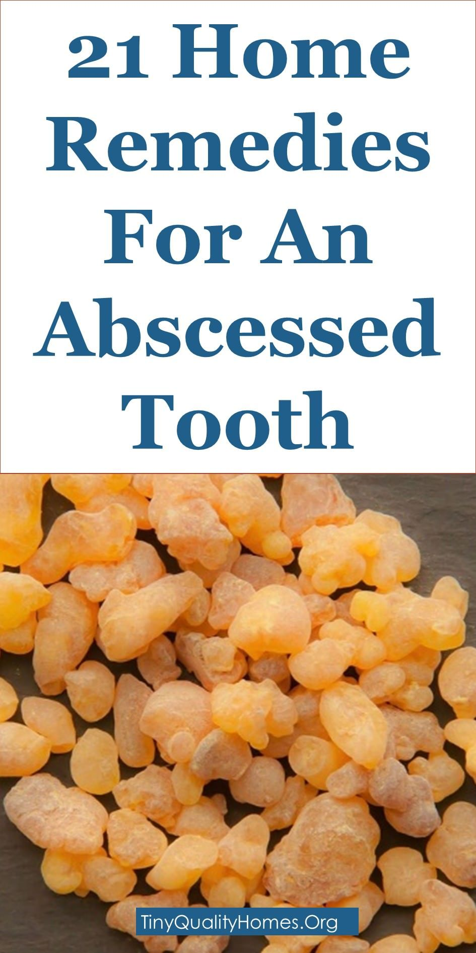 Home Remedies For An Abscessed Tooth  Home Remedies  Pinterest