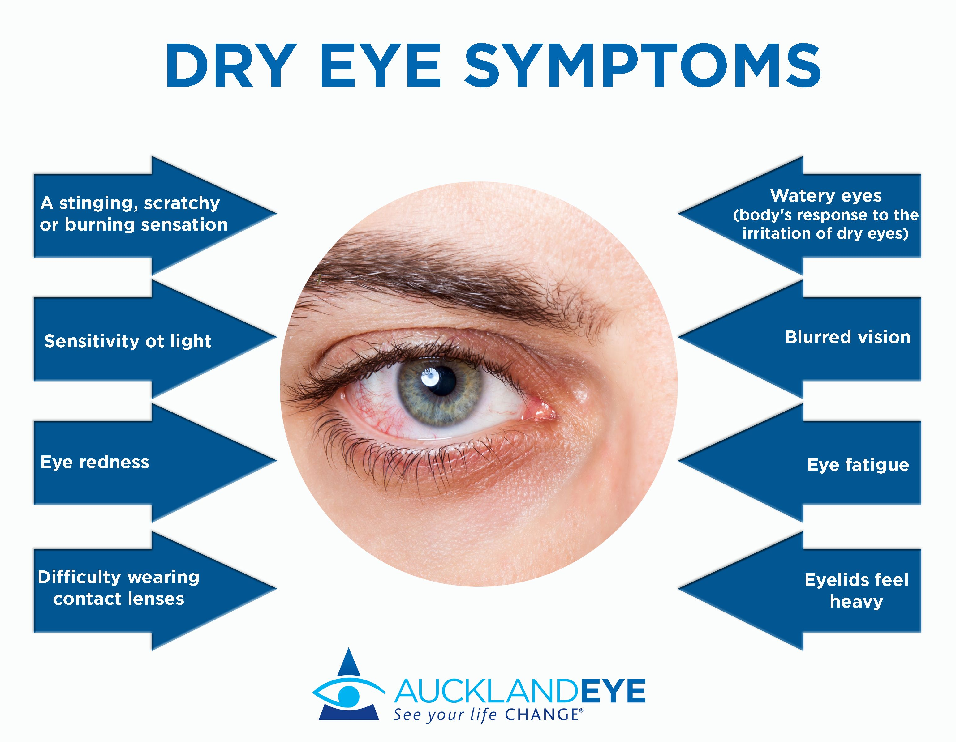 Dry Eye Symptoms Dry eyes, Dry eye symptoms, Dry eye