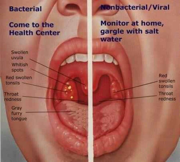 When a sore throat means a doctor visit... | Health | Pinterest ...