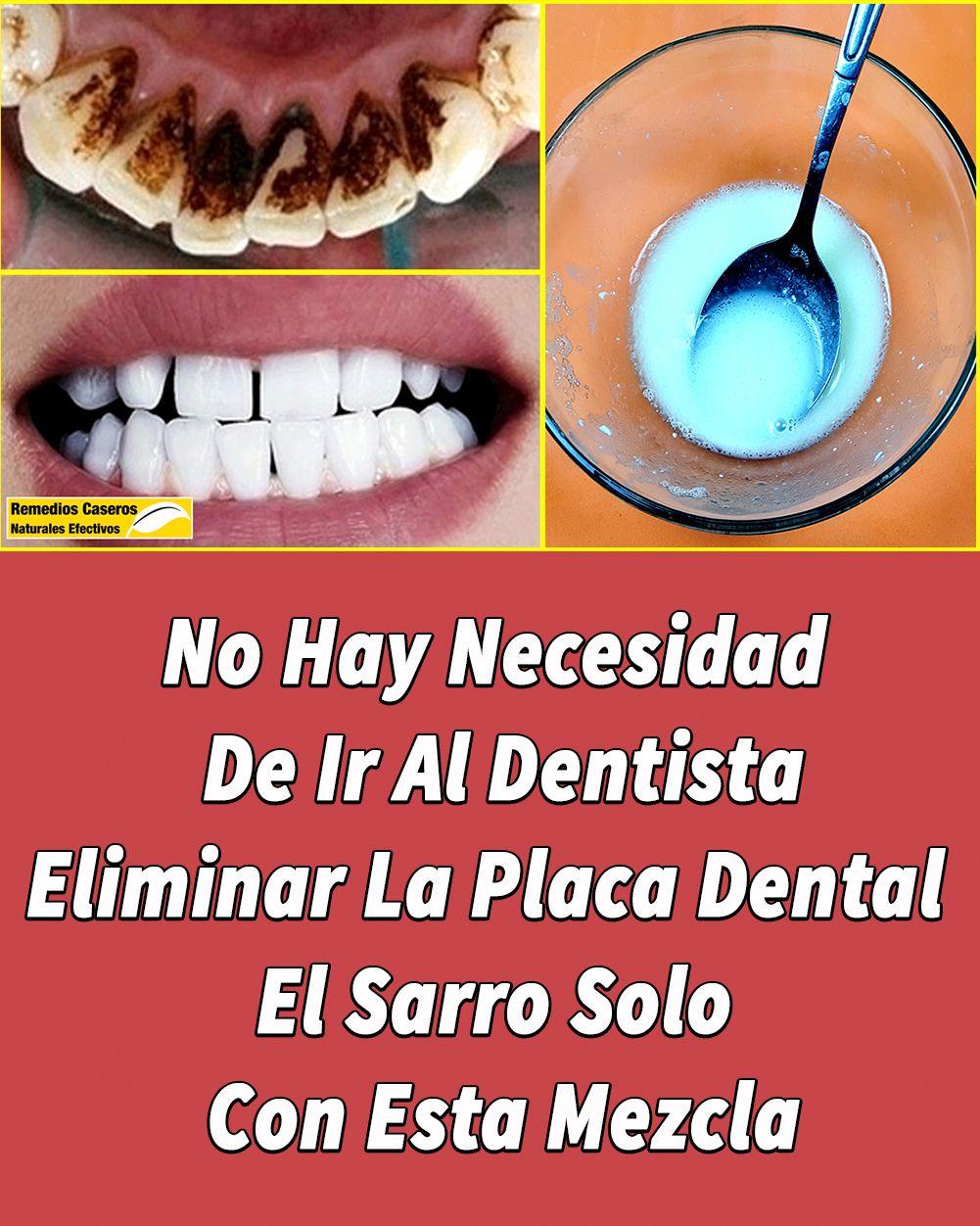 No Hay Necesidad De Ir Al Dentista Eliminar La Placa Dental Y El Sarro Solo Con Esta Mezcla Blanqueamiento Dental Casero Placas Dentales Blanqueamiento Dental