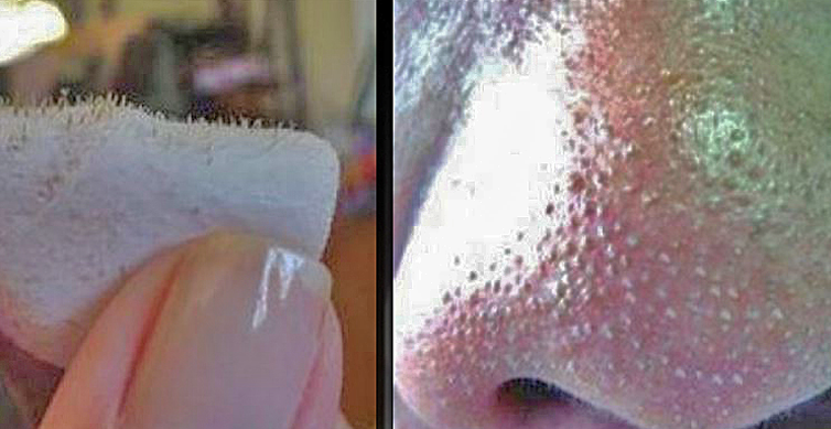 Cómo eliminar los puntos negros usando sal, limón y agua.