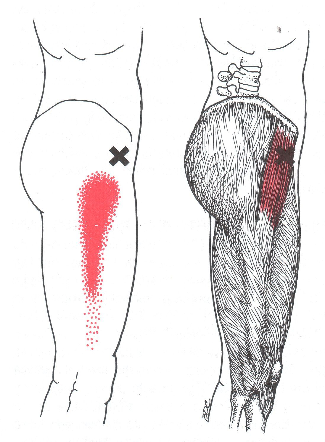 Tensor Fasciae Latae | The Trigger Point & Referred Pain Guide ...