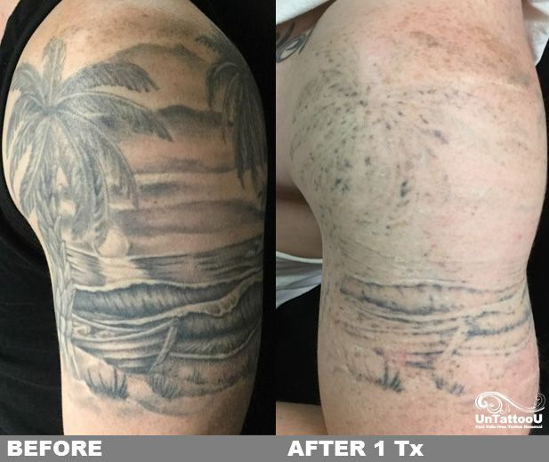 Great Results After One Treatment With Picosure And Our Laser Tattoo