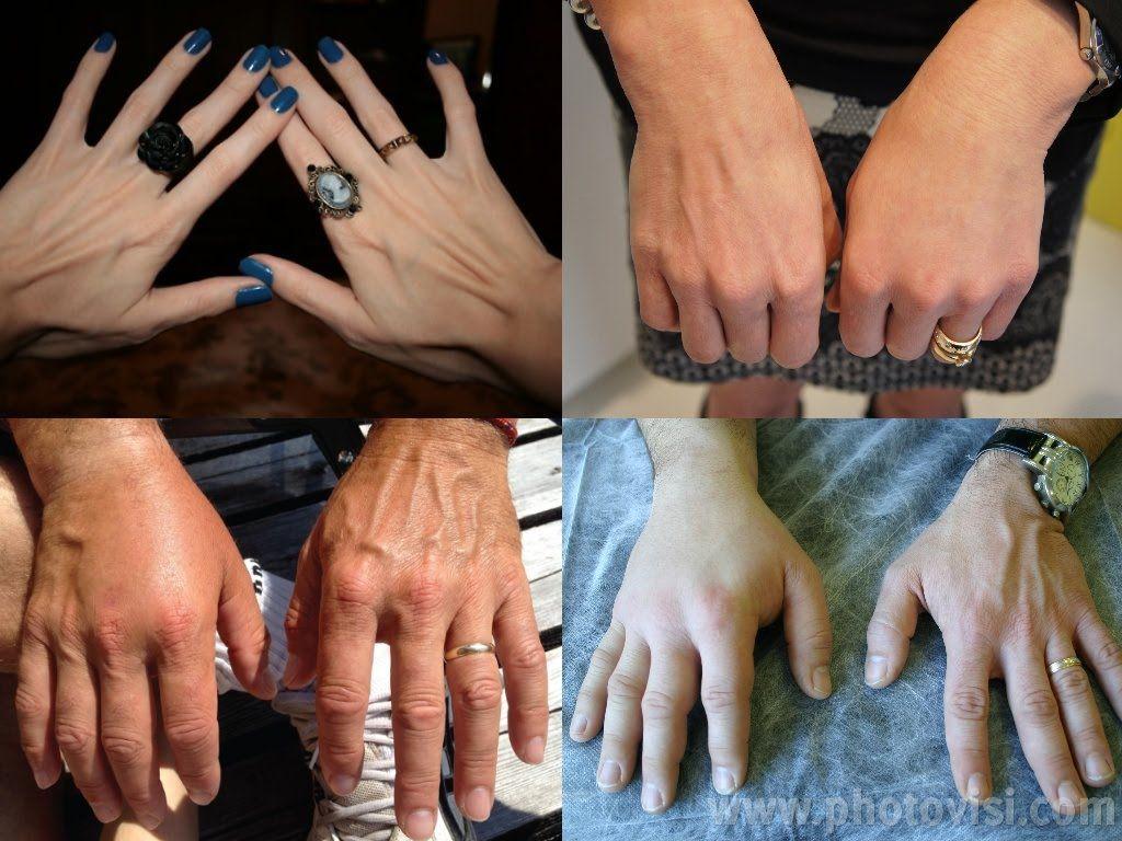 خلطة مدهلة لتسمين اليدين واخفاء العروق بسرعة رهيبة وإلى الأبد Health And Beauty Rings For Men Hands