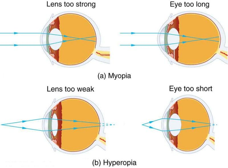 Part A Shows Two Figures Of Cross Sectional Area Of Eye Depicting Myopia In Both The Figures Parallel Rays Coming From An Object P Physics Image Archive Eyes