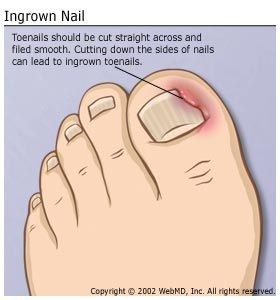More or less, the ingrown toenail is a result of the nail growing ...