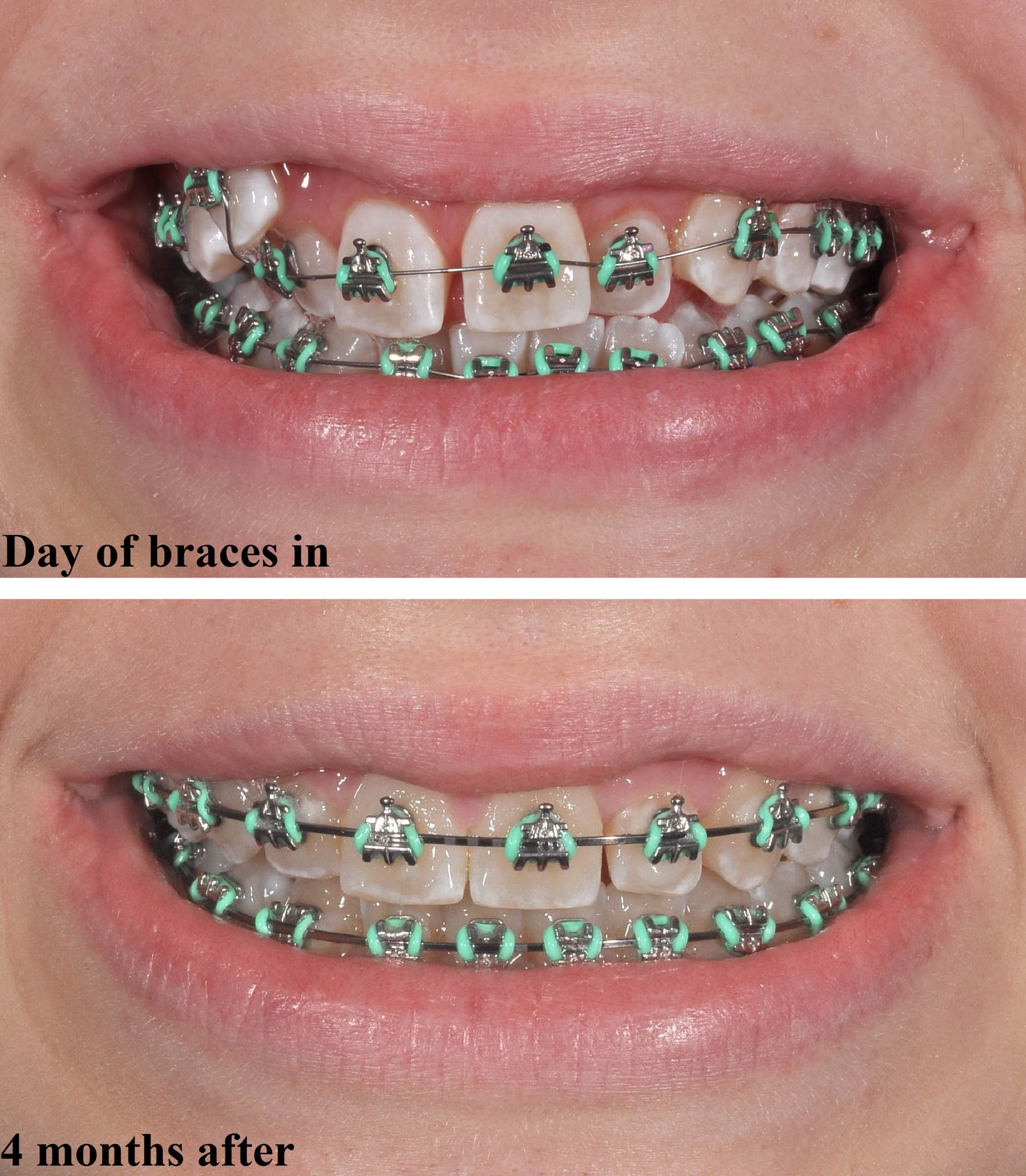 Braces Off Quotes A Great Progress Shot Taken At Drle's Patients 4 Month Braces
