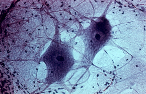A Nerve Cell's Bristly Shape Is Distinctly Different From