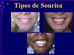 Image result for tipos de sonrisa