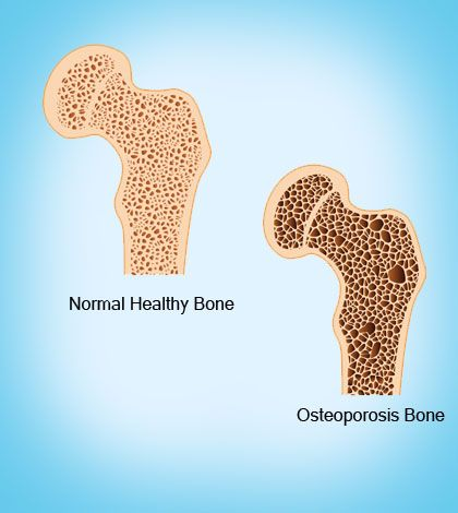 23++ Treat osteoporosis related compression fractures info