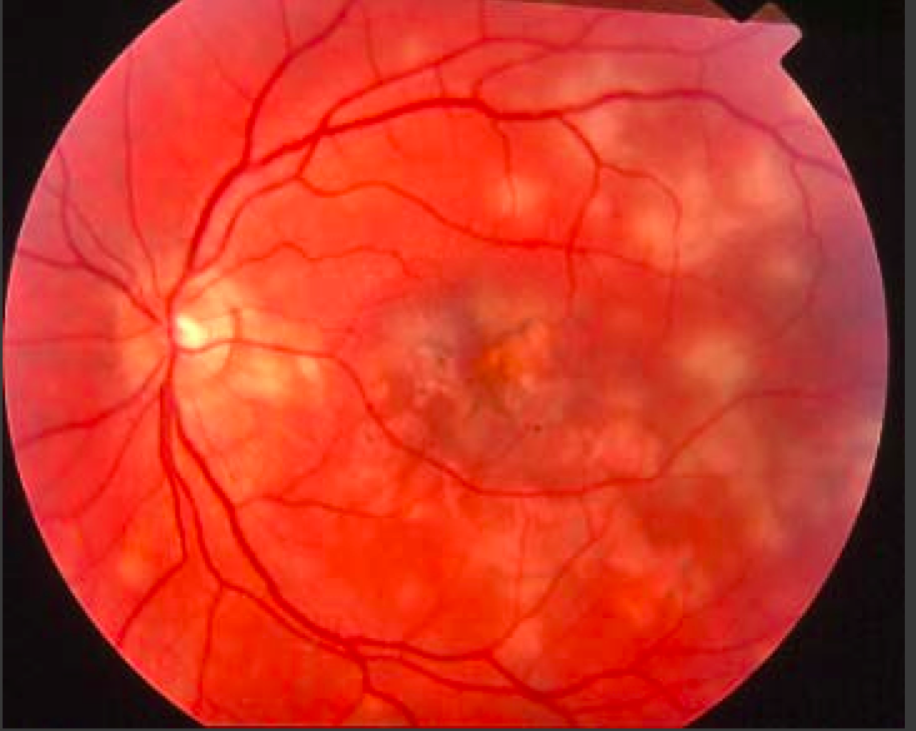 birdshot chorioretinopathy rare form of posterior uveitis strong association with hla
