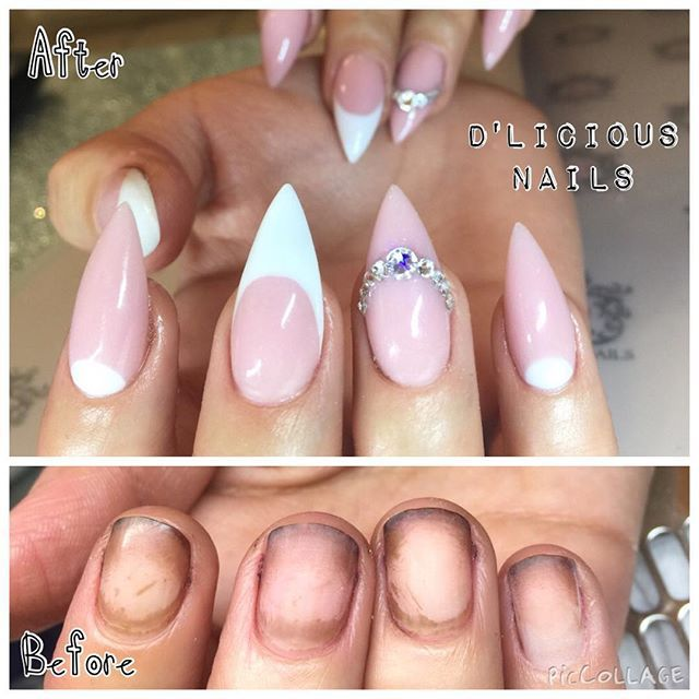 Such An Incredible Transformation Using Tammy Taylor Cover It Up Light Pink Acrylic And Whitest White