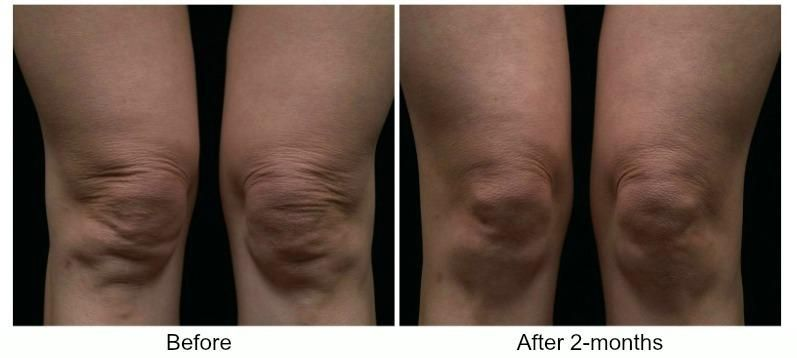 Tighten The Skin Around Your Knees Non Surgically With Thermage Skin Tightening Tre Natural Skin Tightening Laser Skin Tightening Skin Tightening Treatments