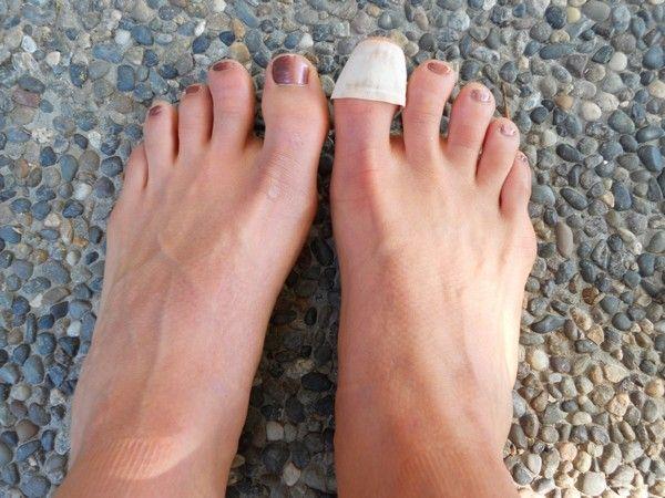 bacterial nail infection nails care nails art pinterest toe