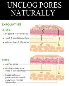 how to clear pores naturally