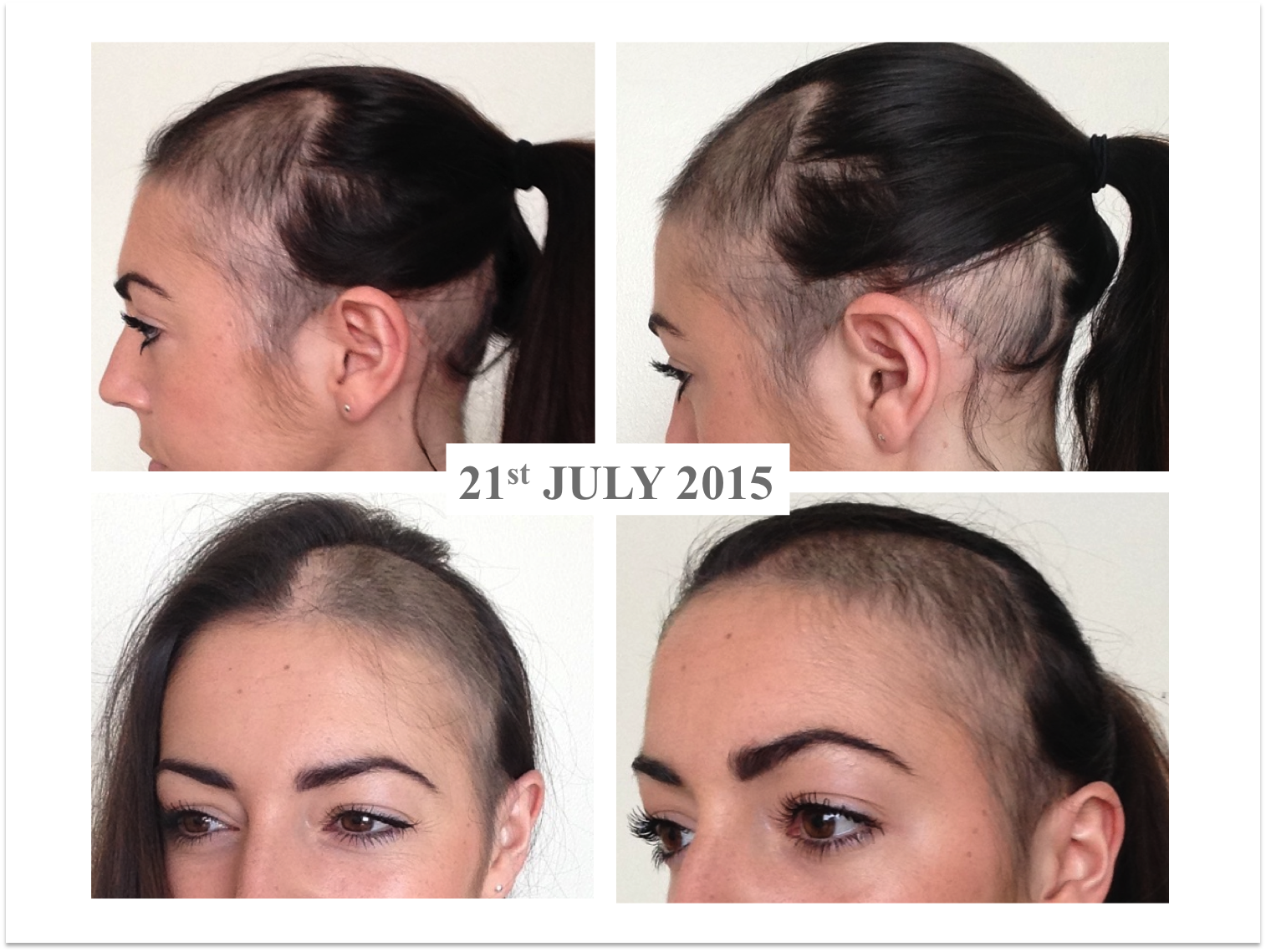 Alopecia Areata: The Stages Of Regrowth