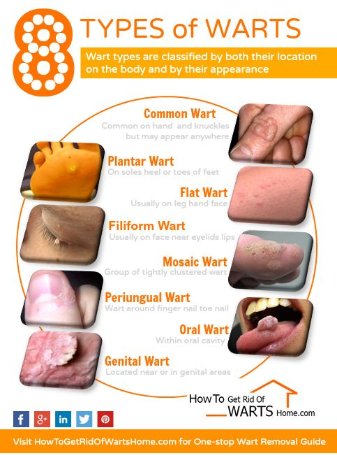 hpv type of warts)