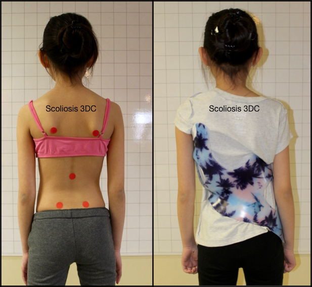 Thoracolumbar Scoliosis Gensingen Brace Scoliosis Brace Scoliosis Bracing Scoliosis Scoliosis Scoliosis Brace Girl Outfits